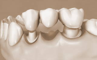 Как вернуть 13 за протезирование зубов